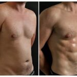 High Definition Liposculpture