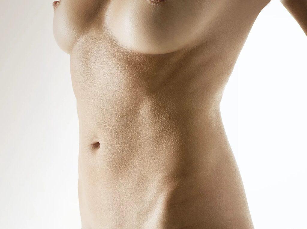 Bauchdeckenstraffungbild