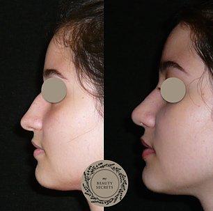 Verkürzung Anheben der Nasenspitze Höckerabtragung