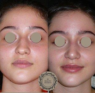 Verschmälerung Nasenrücken Nasenspitzenprojektion