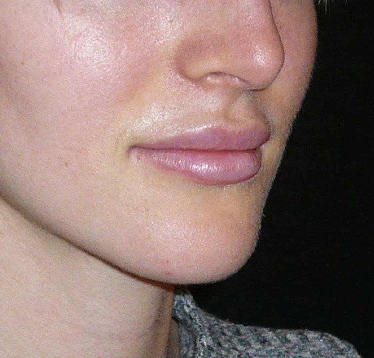 lippenvergrößern nachher