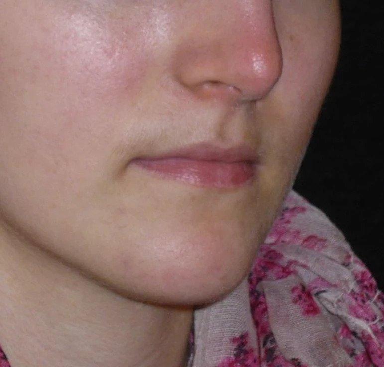 lippenvergrößern vorher